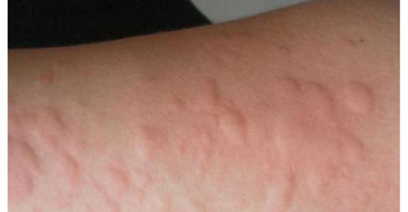 生理前 蕁麻疹